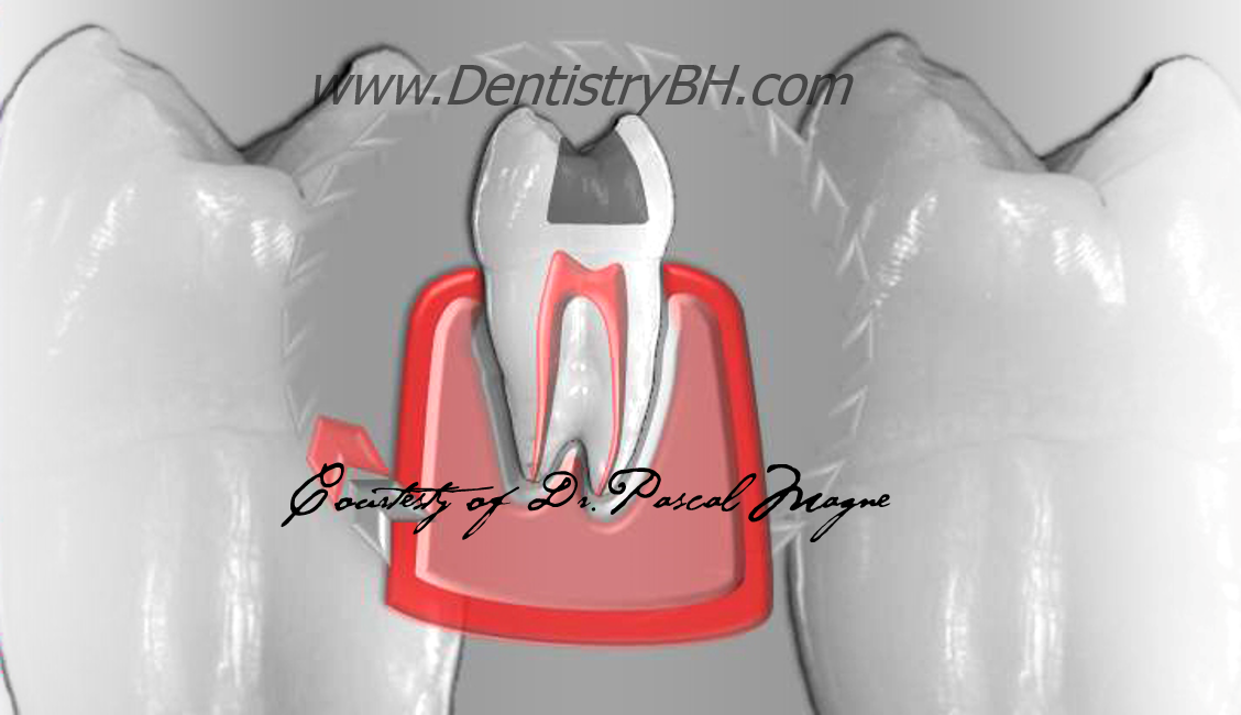 2_Biomimetic-Dentisry-Tooth-Cycle-Death--Silver-Amalgam-Filling