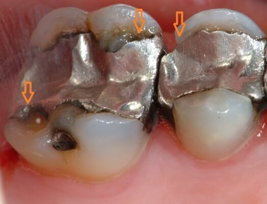 Silver amalgam fillings needing replacement