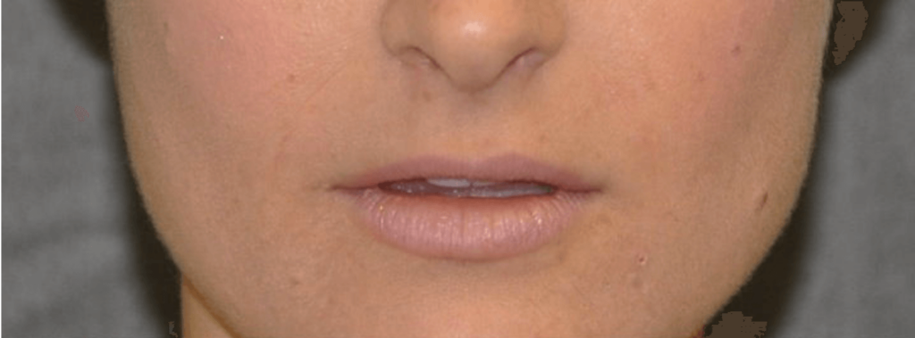 Lip Lift - Before