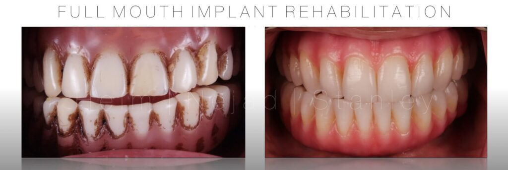 titanium better than zirconia implant