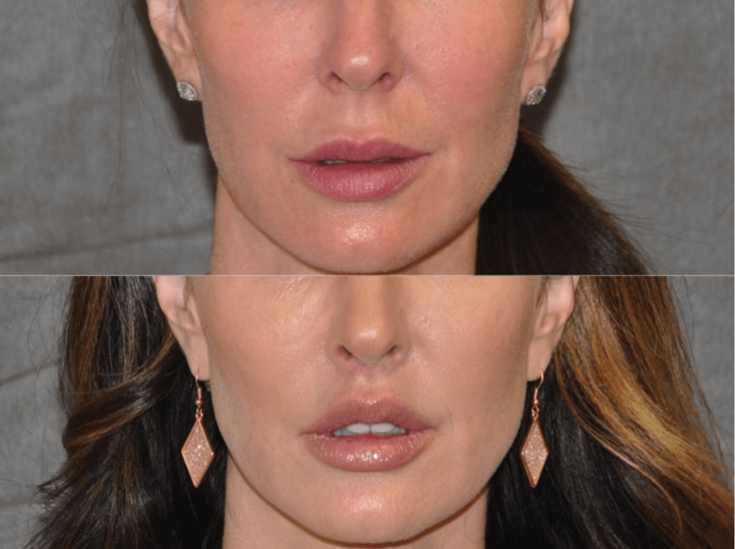 Dental Lip Lift before and after photos