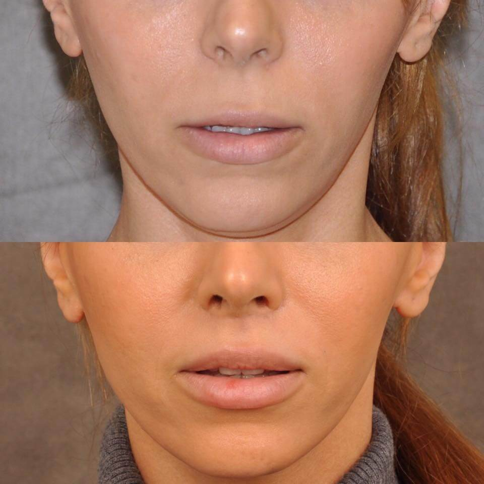 Modified Upper Lip Lift by Dr. Ben Talei