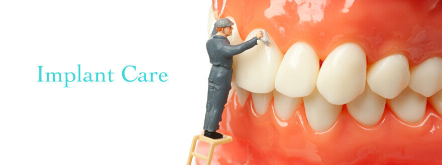 are dental implants hard to clean?