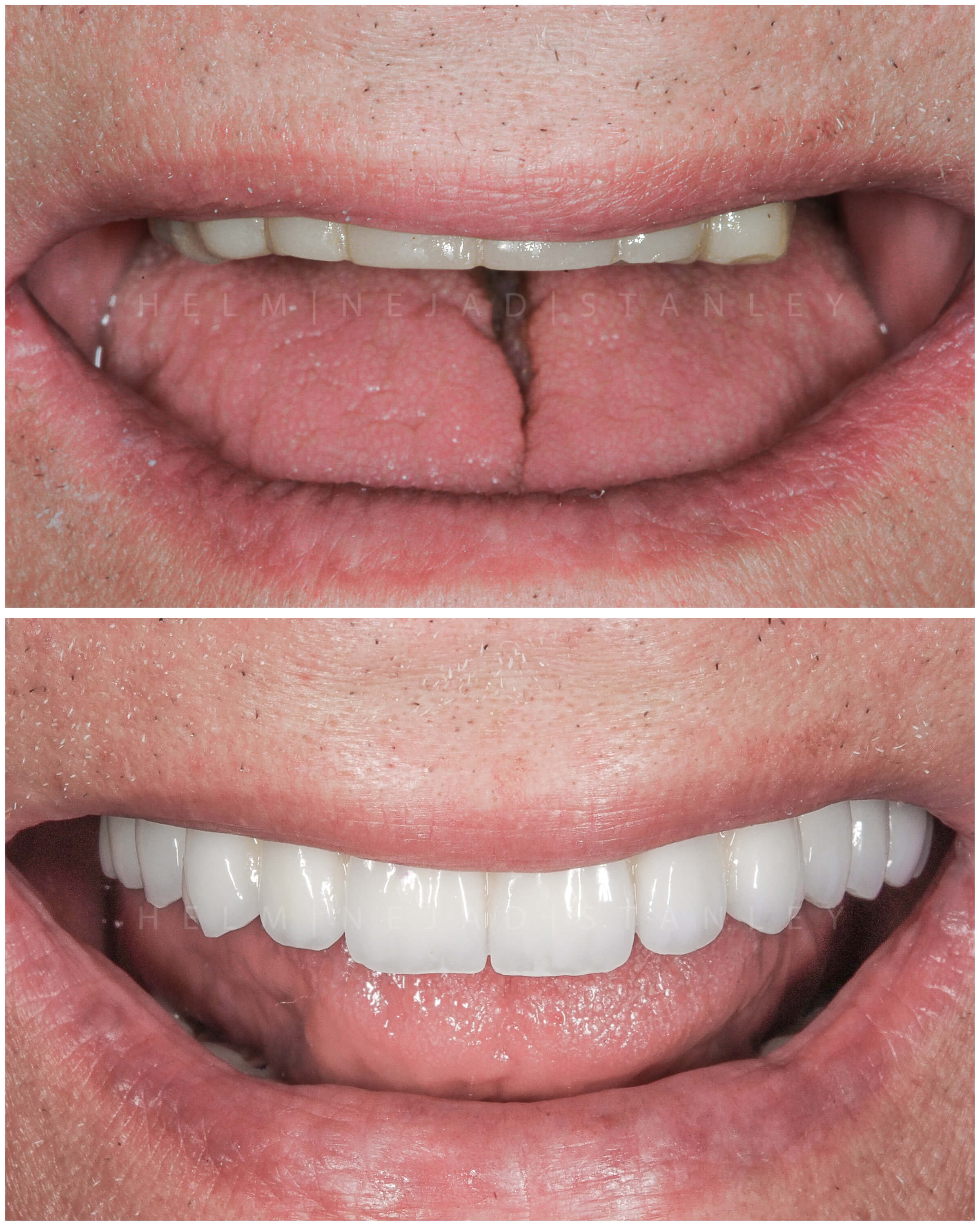 Cosmetic smile makeover before and after of the upper arch.