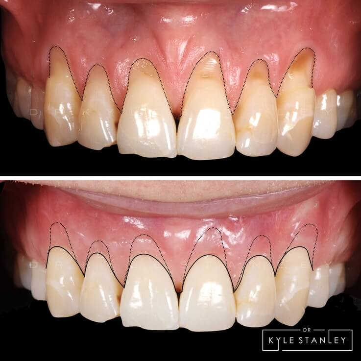 Pinhole surgical technique before after 2 Beverly Hills CA